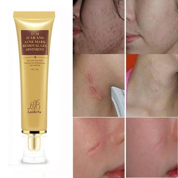Original TCM Scar removal cream sri lanka